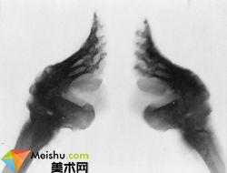 X-光照出來的小腳形狀